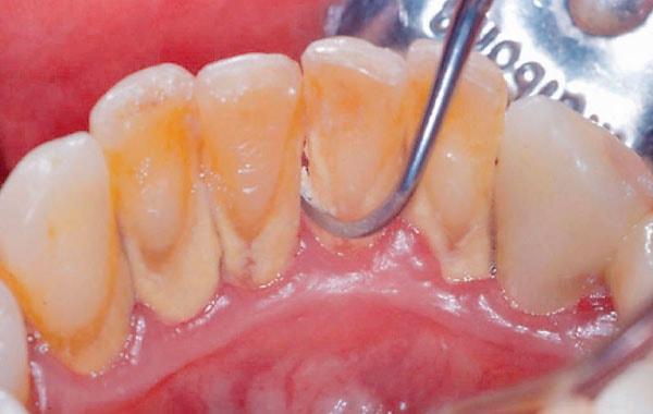 歯のクリーニング(軽度の症例に適応)