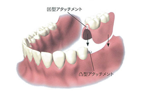 アタッチメント義歯(口腔内に固定)