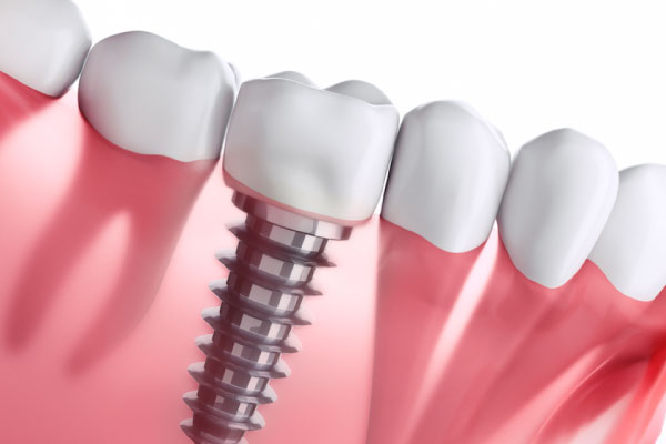 周囲の健康な歯の負担を軽減