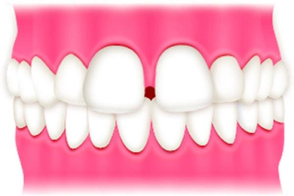 子どものすきっ歯