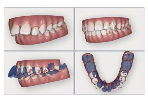 視覚的に歯の移動を確認
