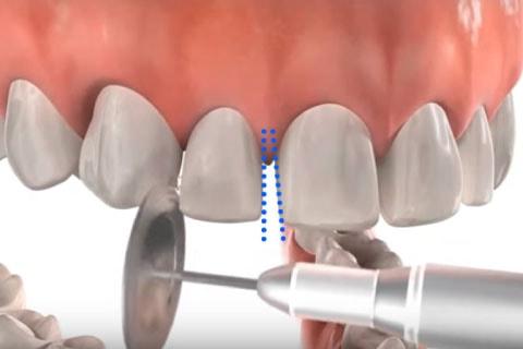 歯の側面を削る