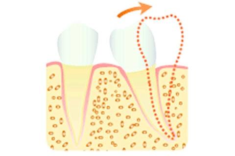 歯軸傾斜の改善