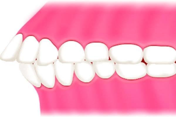 出っ歯(上下顎前突)