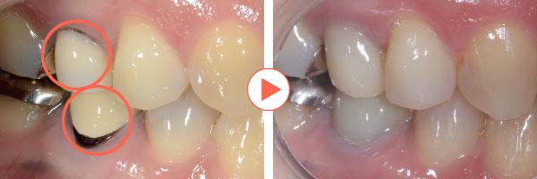CAD/CAM冠(保険適応の白い歯)